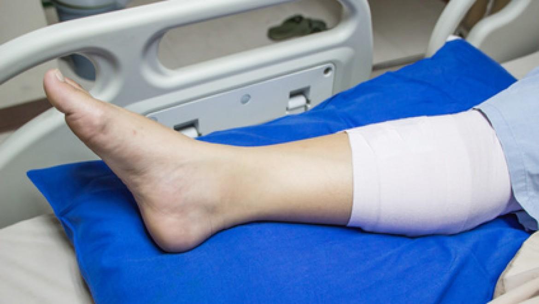 מטופלת שסבלה מאצבעות שחורות כתוצאה מסיבוכי סכרת
